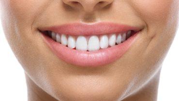 gadgets til tænderne